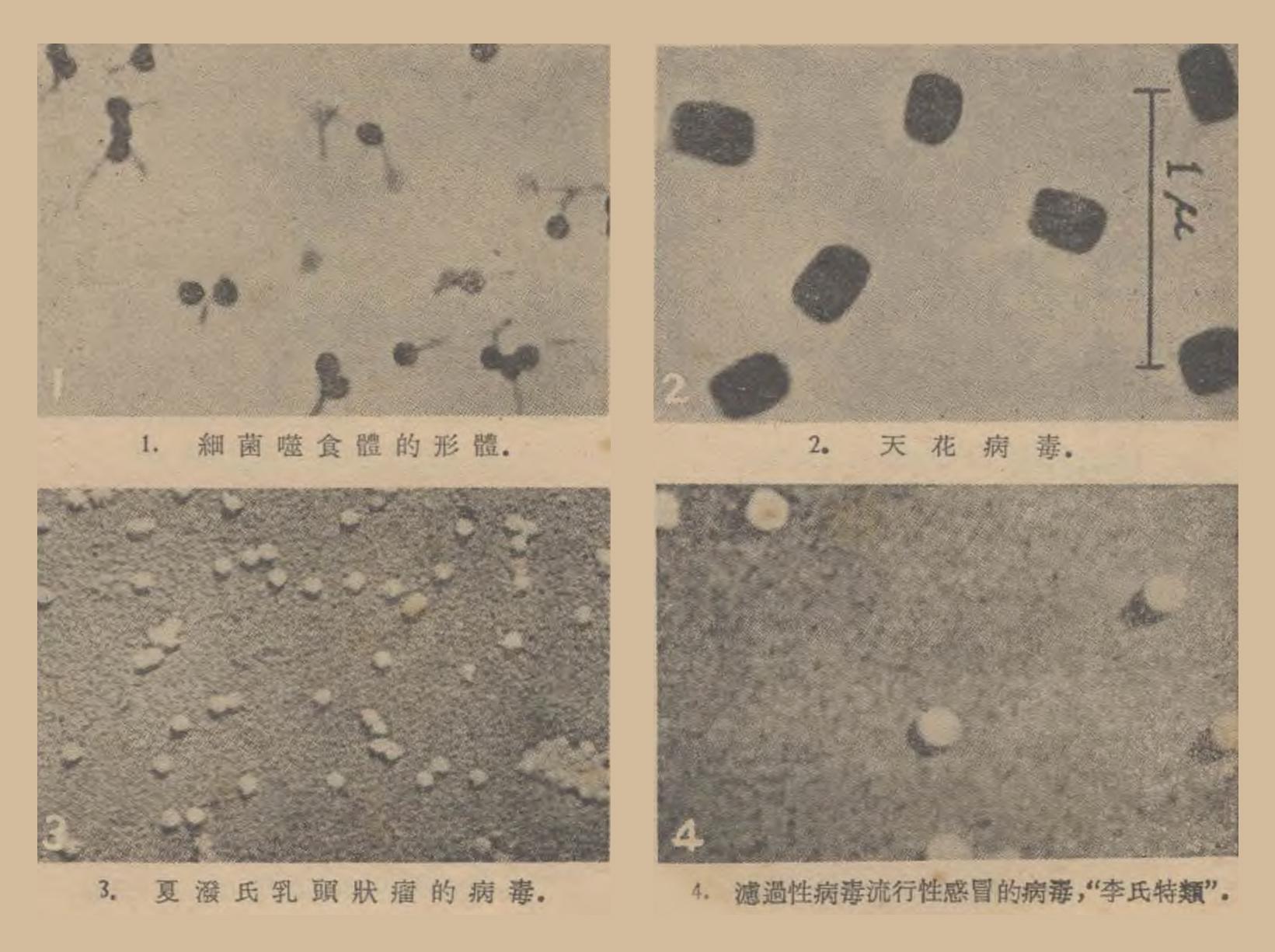 图片来源:《再談濾過性病毒:2.天花病毒:[照片]》 , 《科學畫報》1949 年 第 15 卷 第 11 期,383 頁