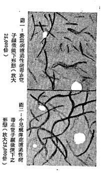圖片來源:《濾病毒(微如斯)(附圖)》 ,黃蘭言《醫藥學》 1947 年複 1 第 6 期 ,29-30 頁